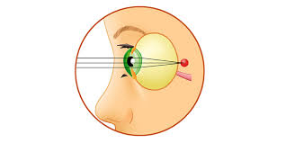 болезни глаз дальнозоркость