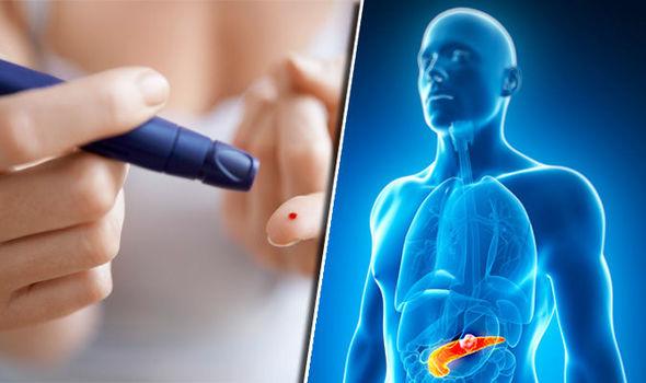 Как лечить сахарный диабет 2