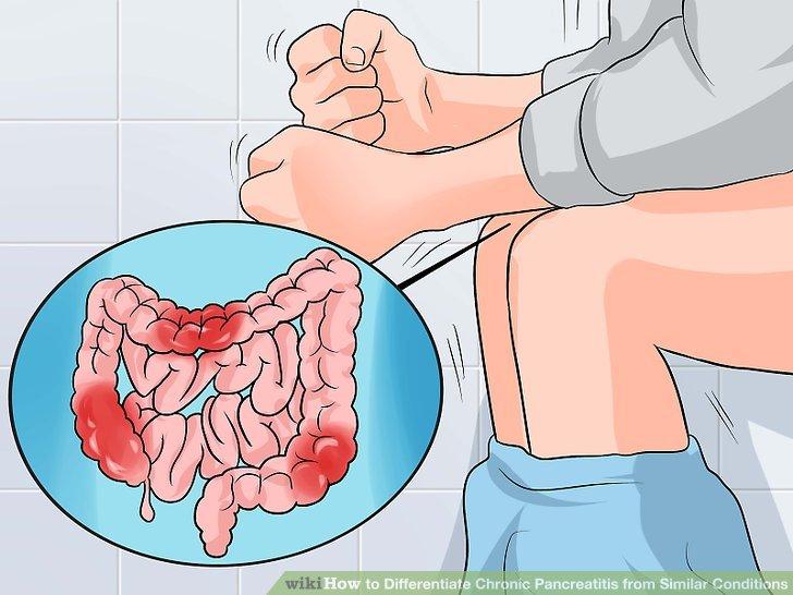 Панкраген - пептиды для поджелудочной железы